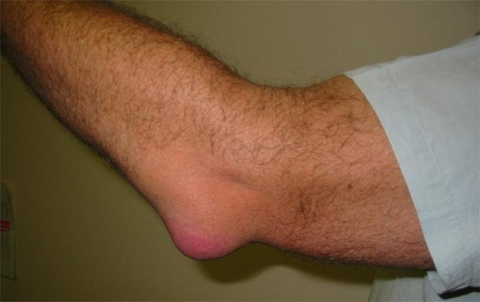 Болит правая рука в локтевом сгибе