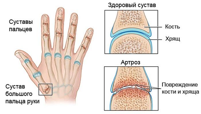 Схема суставов кисти руки