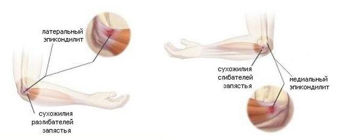 В локтевом суставе болит рука ортез лангетка лучезапястного сустава