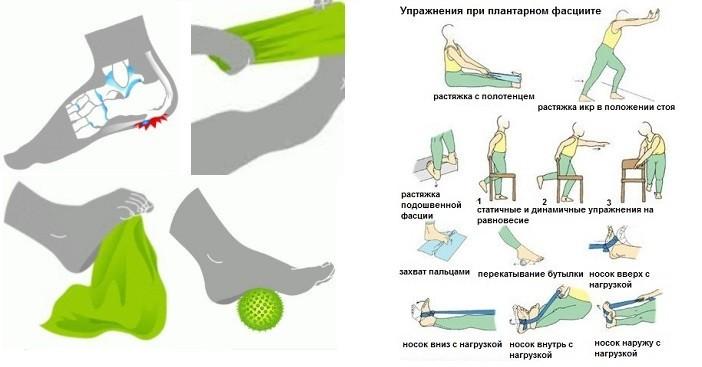 упражнения при шпоре