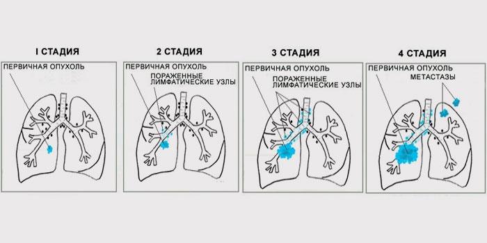 Признаки рака легких на разных стадиях