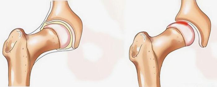 Вывих головки протеза