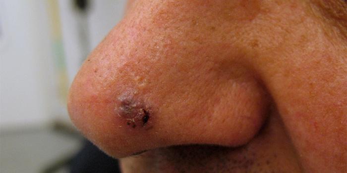 базалиома, на носу, причины, лечение, симптомы