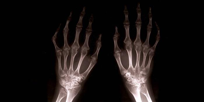 Верхние конечности на рентгеновском снимке