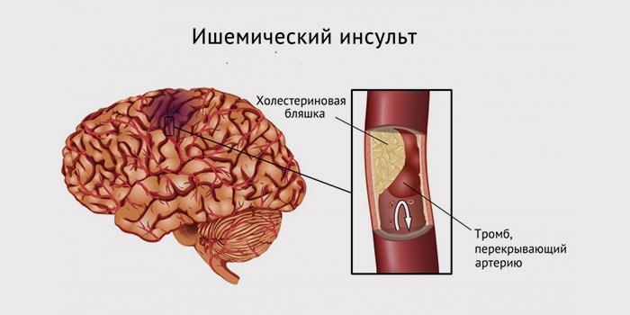 Обширный ишемический инсульт правого и левого полушария головного мозга