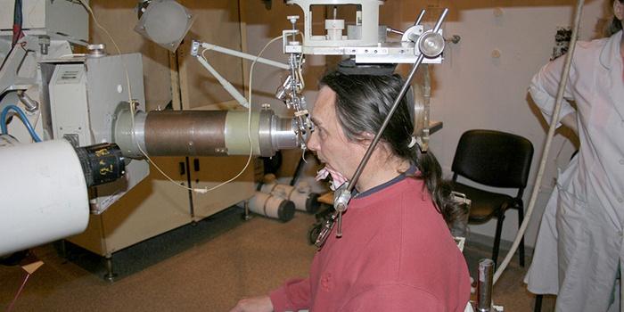 Облучение базалиомы носа