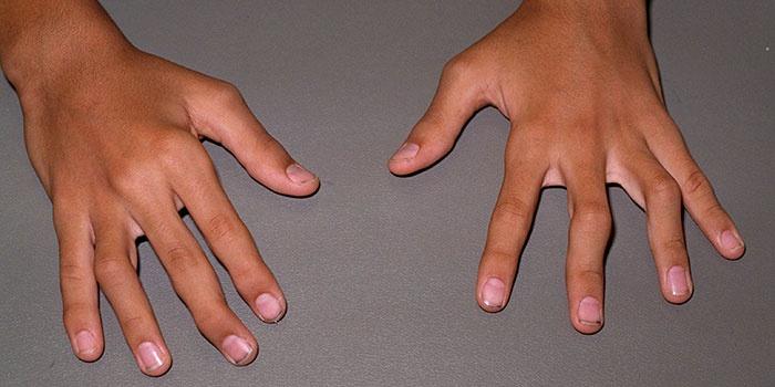 Почему болят пальцы на руках при сгибании