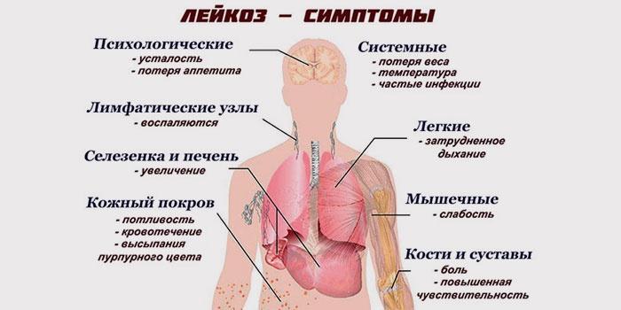 Симптомы лейкоза на схеме
