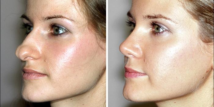 Девушка до и после операции
