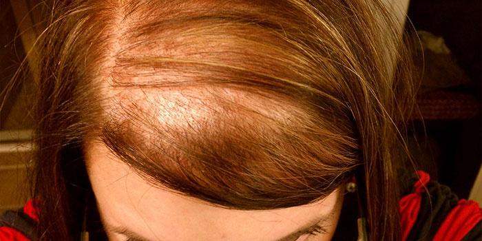 Диффузное выпадение волос у женщины