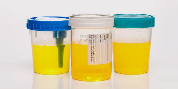 Урина в контейнерах