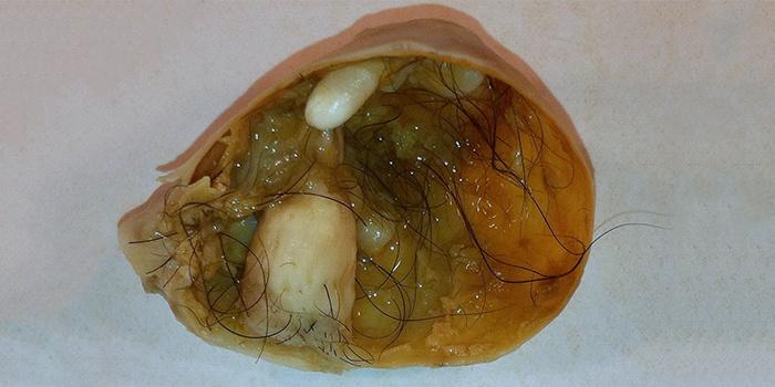 Видна ли и как выглядит киста яичника на узи