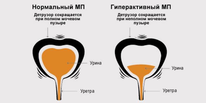 Нейрогенный мочевой пузырь у детей: симптомы и лечение дисфункции
