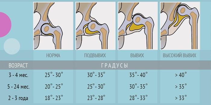 Узи тазобедренного сустава у грудничка расшифровка углы альфа коксартроз 1 степени тазобедренного сустава отзывы