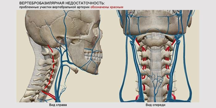 Инсульт в задней мозговой артерии клиника