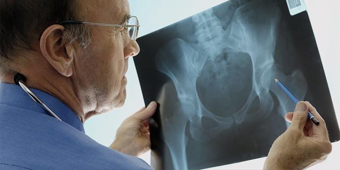Врач изучает рентген