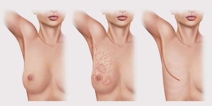 Результат операции по удалению груди