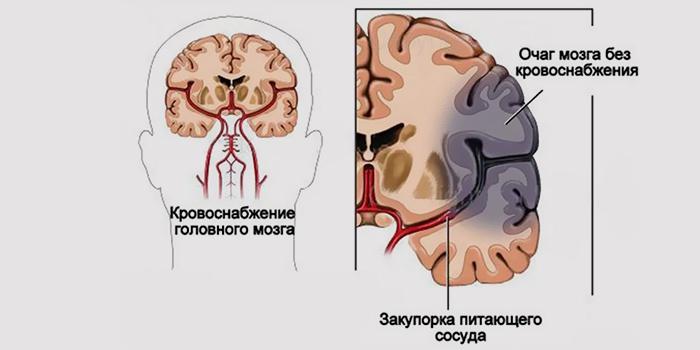 Инфаркт мозга в бассейне левой сма