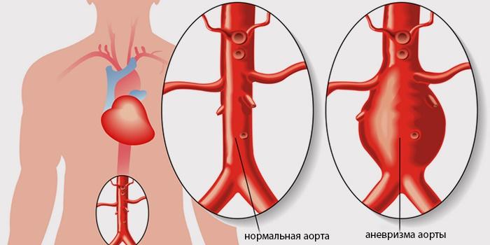 Нормальная и расширенная аорта