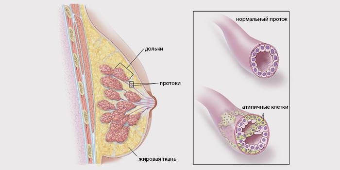 Протоковый рак груди