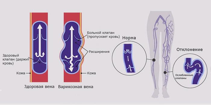 Здоровые и варикозные вены
