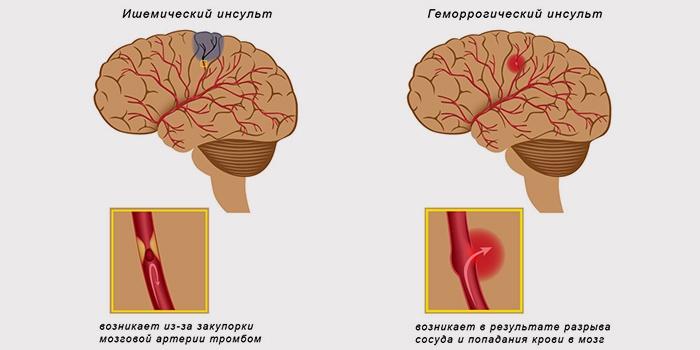 Ишемический и геморрагический инсульт головного мозга