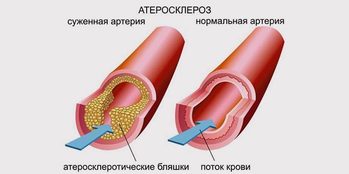Нормальная и суженная артерия