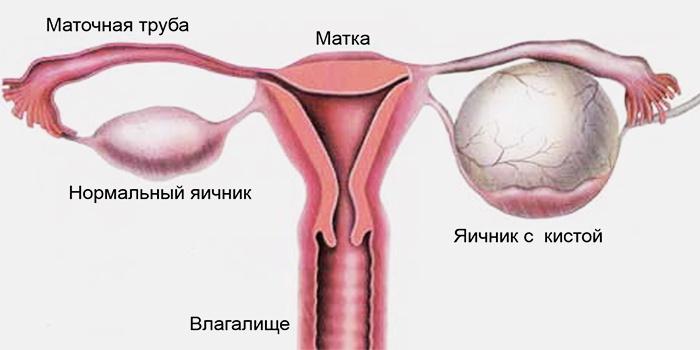 Сравнение нормального и больного яичника