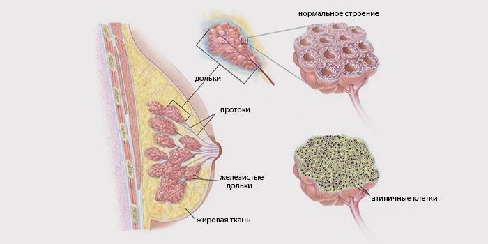 Инвазивный дольковый рак груди