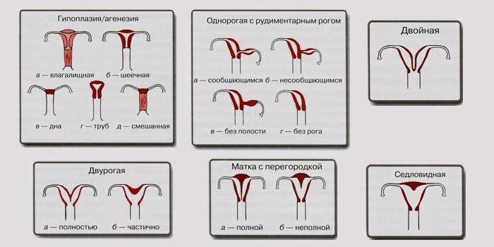 Типы аномалий развития матки