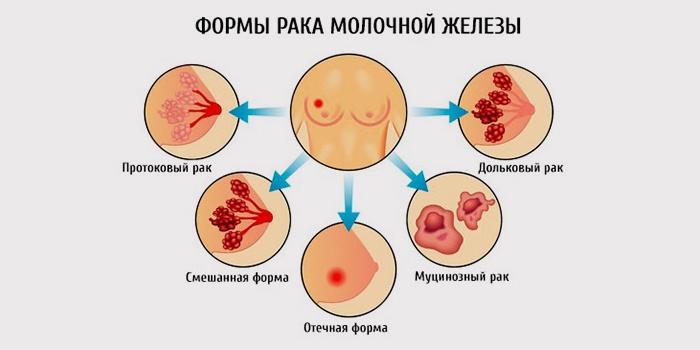 Разные формы онкологии