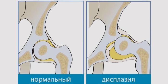 Нормальный сустав и дисплазия