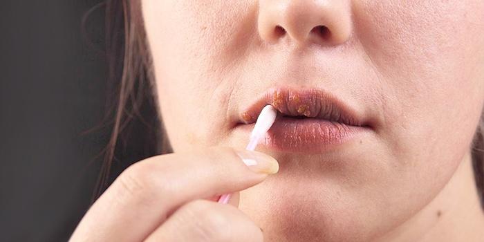 Девушка лечит герпес на губах