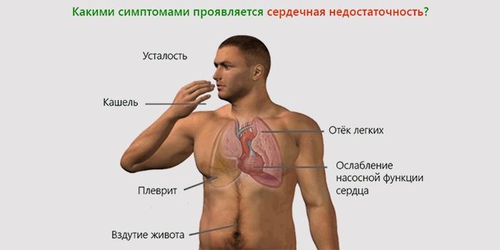 Симптомы хронической сердечной недостаточности