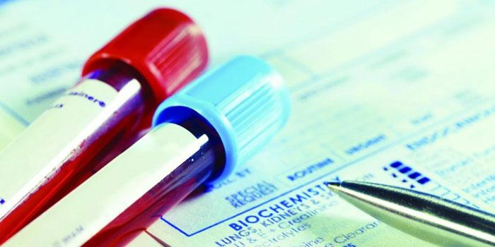 Пробирки с кровью и результаты анализа
