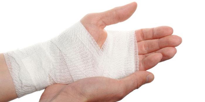 Перевязанная рука
