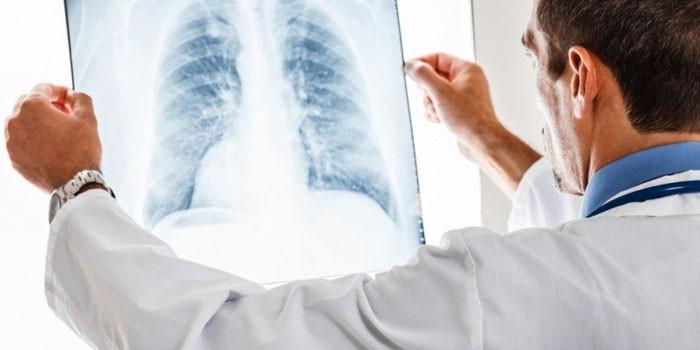 Медик изучает рентгеновский снимок