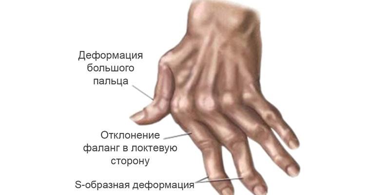 Деформации суставов кисти