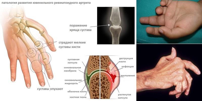Признаки ювенального артрита