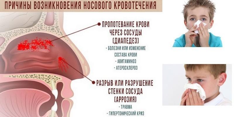 Причины возникновения носовых кровотечений