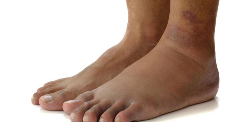 Отечность ног при циррозе