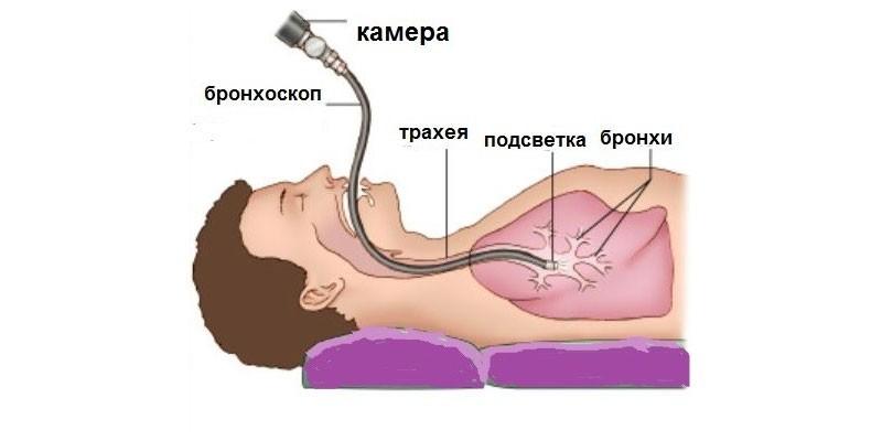 Санационная бронхоскопия