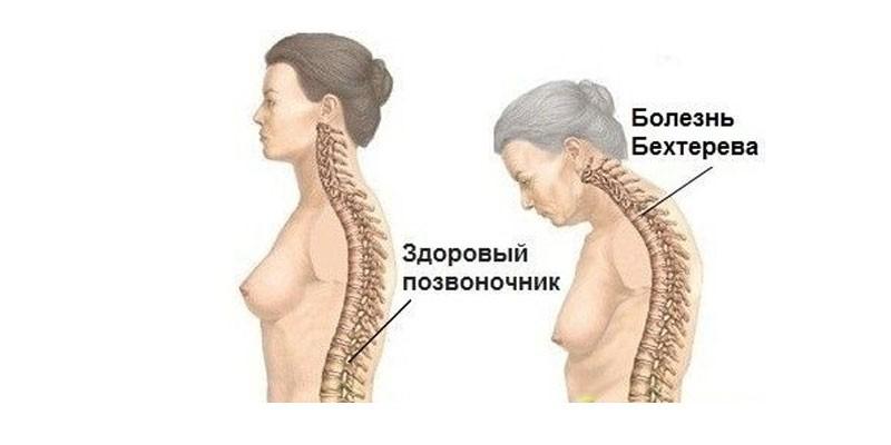 Болезнь бехтерева у женщин после 40 лет