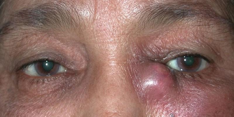 Проявление заболевания на глазу у человека