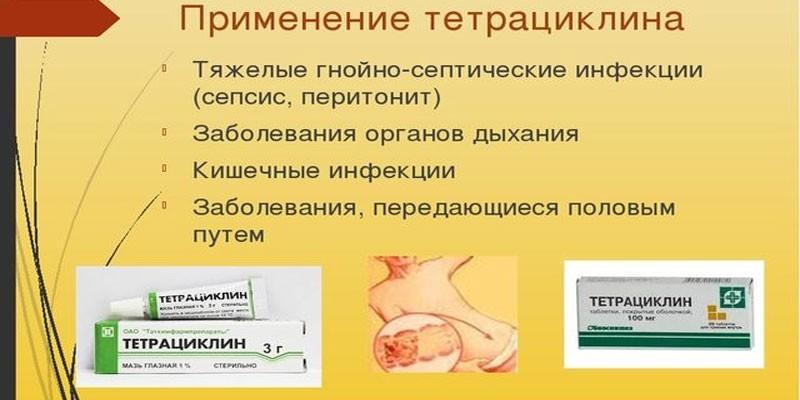 Применение тетрациклинов