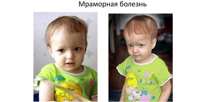Ребенок с мраморной болезнью
