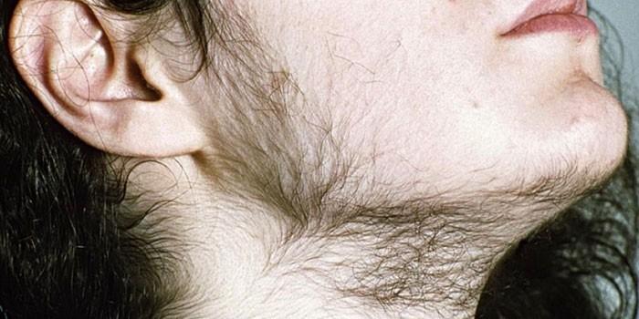 Волосы на лице у женщины