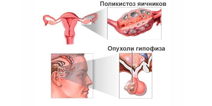 Причины вторичной аменореи