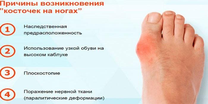 Лекарства для лечения суставов стопы хруст в суставах у ребенка 11 лет