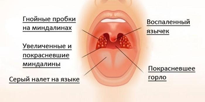 Симптомы абсцесса горла